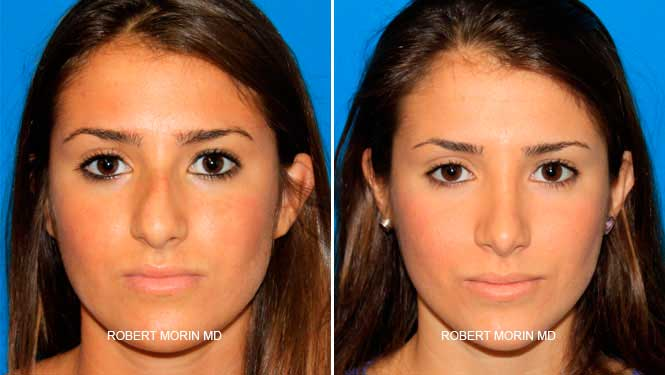 Rhinoplasty. Before and After Treatment Photos - female patient 1