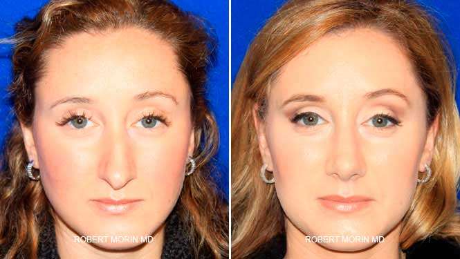 Rhinoplasty. Before and After Treatment Photos - female patient 2
