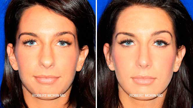 Rhinoplasty. Before and After Treatment Photos - female patient 3