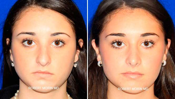 Rhinoplasty. Before and After Treatment Photos - female patient 4