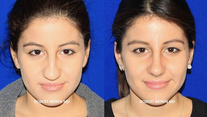 Rhinoplasty. Before and After Treatment Photos - female patient 7