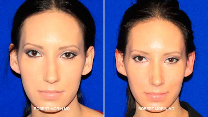 Rhinoplasty. Before and After Treatment Photos - female patient 8