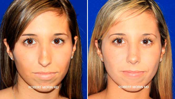 Rhinoplasty. Before and After Treatment Photos - female patient 10