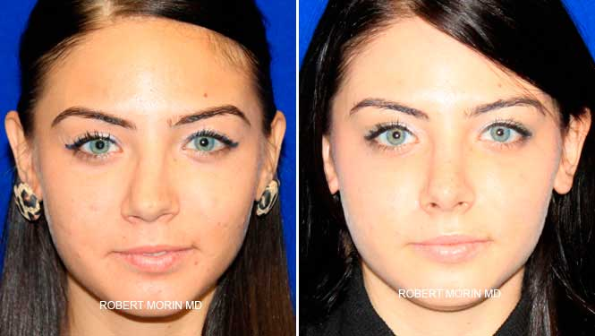 Rhinoplasty. Before and After Treatment Photos - female patient 11