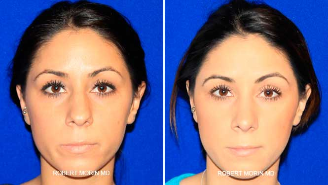 Rhinoplasty. Before and After Treatment Photos - female patient 12