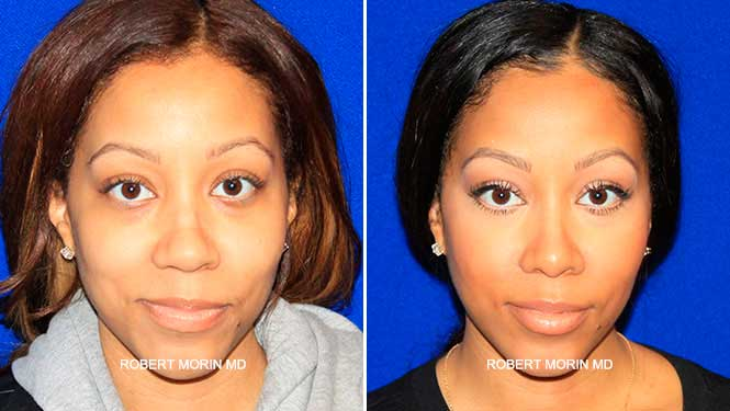 Rhinoplasty. Before and After Treatment Photos - female patient 13