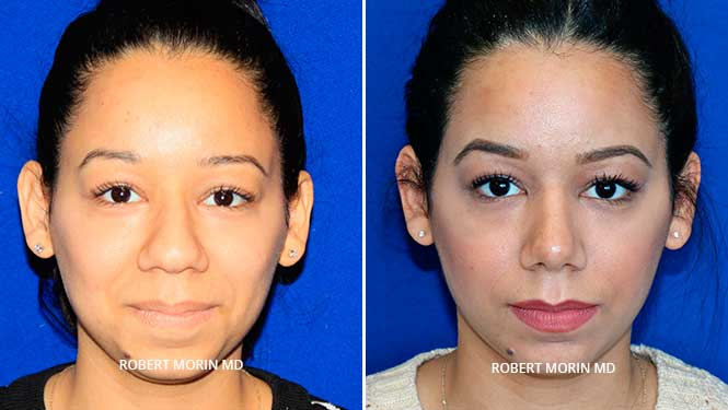 Rhinoplasty. Before and After Treatment Photos - female patient 14