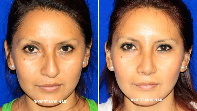 Rhinoplasty. Before and After Treatment Photos - female patient 15
