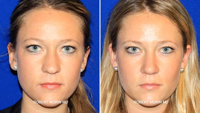 Rhinoplasty. Before and After Treatment Photos - female patient 17
