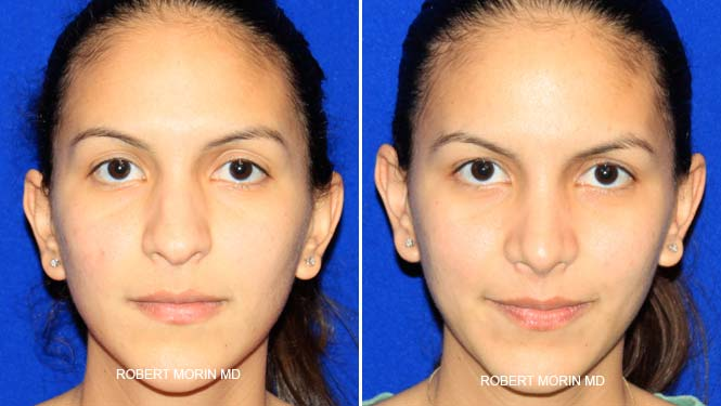 Rhinoplasty. Before and After Treatment Photos - female patient 18