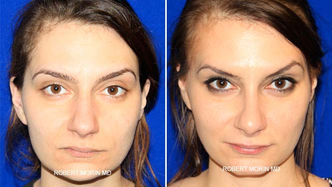 Rhinoplasty. Before and After Treatment Photos - female patient 20