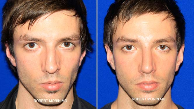 Rhinoplasty. Before and After Treatment Photos - male patient 21