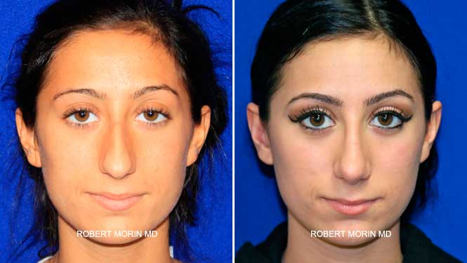 Rhinoplasty. Before and After Treatment Photos - female patient 22