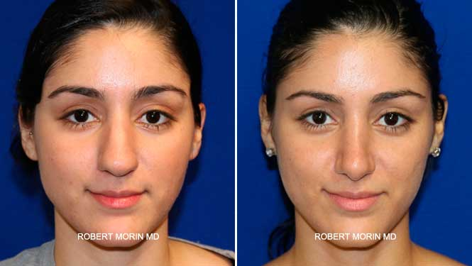 Rhinoplasty. Before and After Treatment Photos - female patient 23