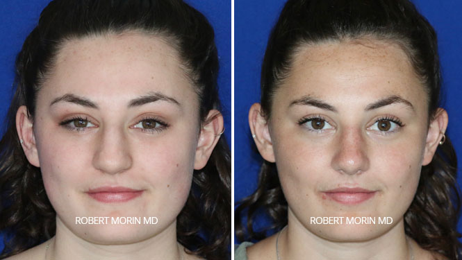 Rhinoplasty. Before and After Treatment Photos - female patient 24