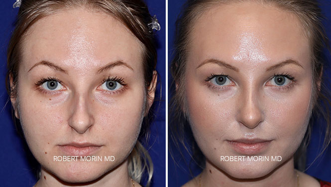 Rhinoplasty. Before and After Treatment Photos - female patient 26