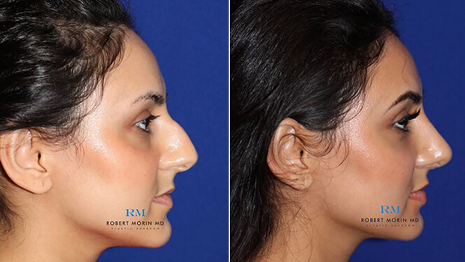 Rhinoplasty. Before and After Treatment Photos - female patient 28