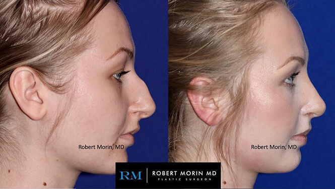 Rhinoplasty. Before and After Treatment Photos - female patient 29