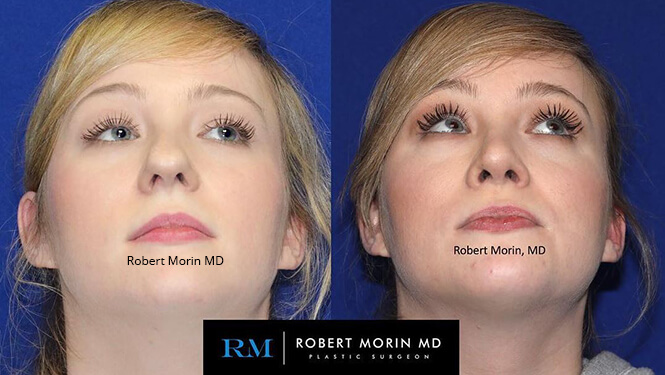 Rhinoplasty. Before and After Treatment Photos - female patient 30
