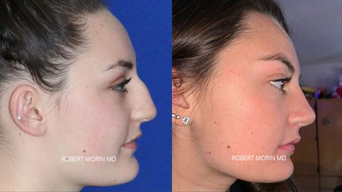 Rhinoplasty. Before and After Treatment Photos - female patient 31