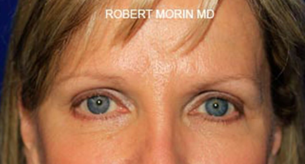 After Treatment photo - Blepharoplasty - female patient 1