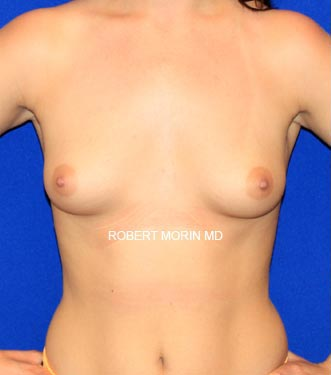Before Breast Augmentation Treatment photo - female patient 1