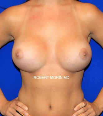 After Breast Augmentation Treatment photo - female patient 1
