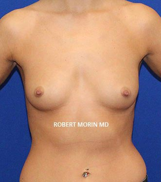 Before Treatment photo - Breast Augmentation - patient 2