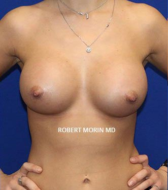 After Treatment photo - Breast Augmentation - patient 2