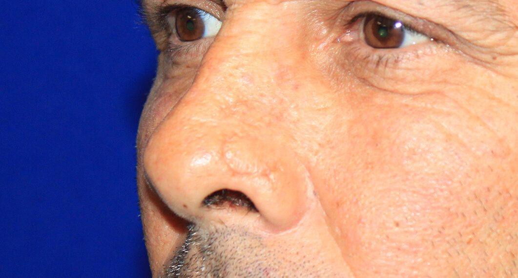 Nasal reconstruction. After Treatment photo - male patient 1