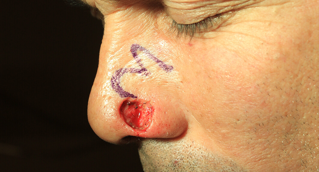 Nasal reconstruction. Before Treatment photo - male patient 1