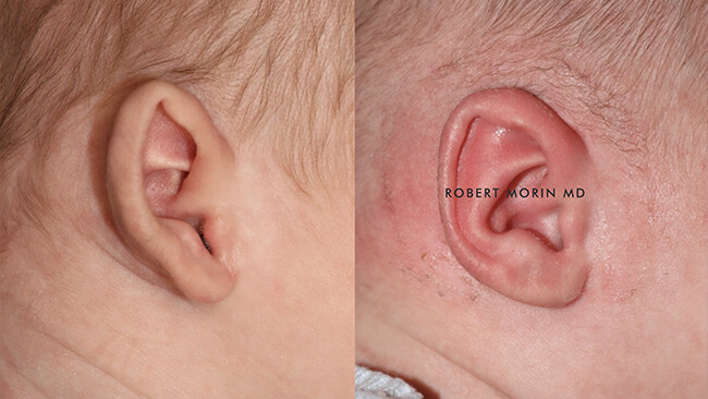 Infant's head, EarWell Infant Ear Molding - Before and After Treatment Photos - right side view, infant baby patient 10