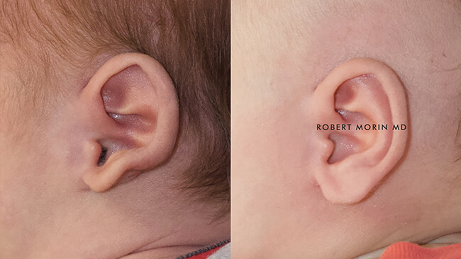 Infant's head, EarWell Infant Ear Molding - Before and After Treatment Photos - left side view, infant baby patient 11