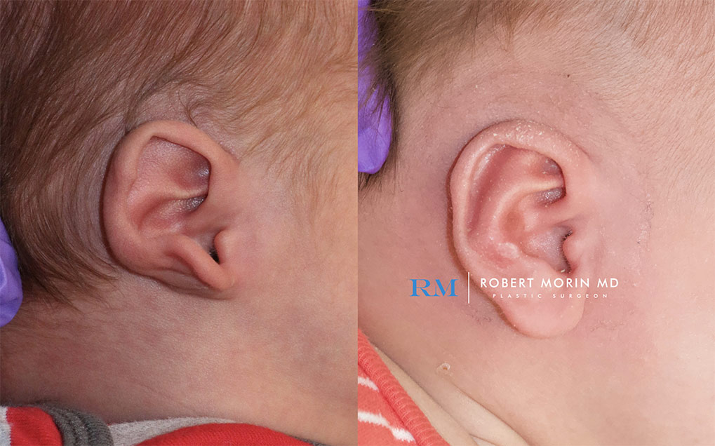 Before and After earwell  patient 1