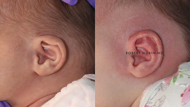 Infant's head, EarWell Infant Ear Molding - Before and After Treatment Photos - left side view, infant baby patient 6