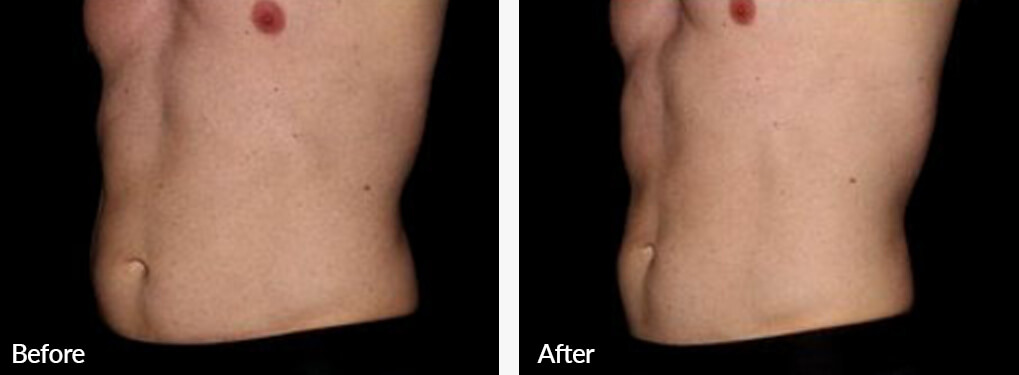 Man's body, Before and After Emsculpt Treatment, left side oblique view, male patient 1