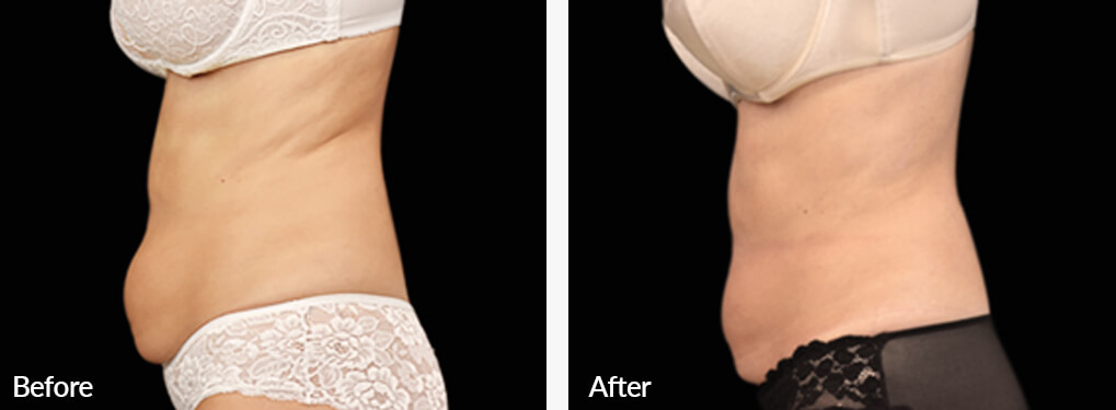 Woman's body, Before and After Emsculpt Treatment, left side view, patient 2