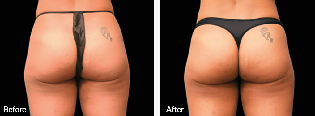 Woman's buttocks , Before and After Emsculpt Treatment, back side view, patient 3
