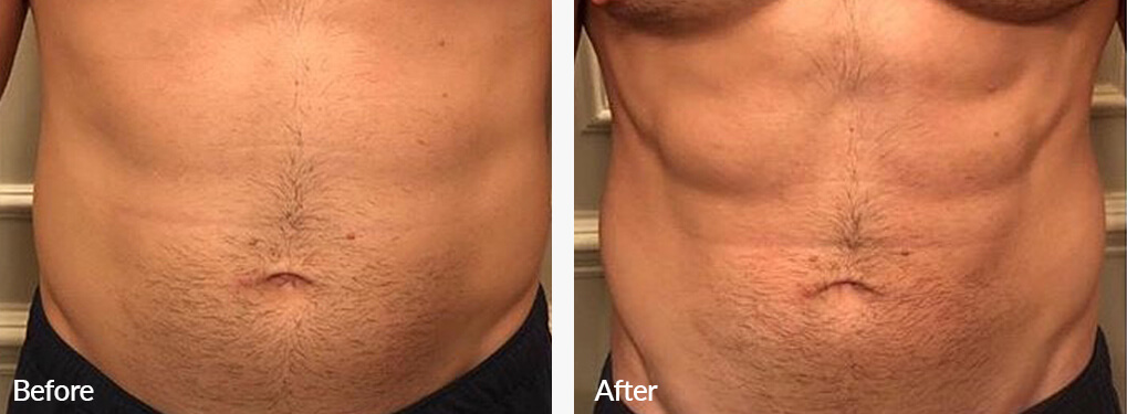 Man's body, Before and After Emsculpt Treatment, front view, male patient 4