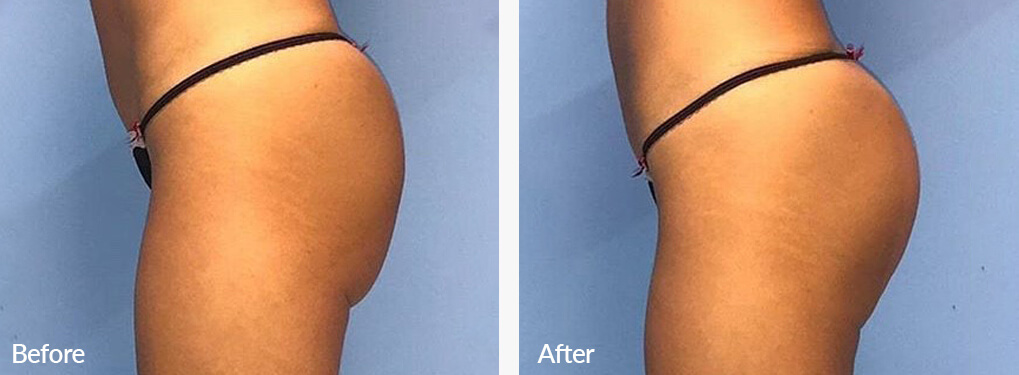 Woman's buttocks , Before and After Emsculpt Treatment, left side view, patient 5