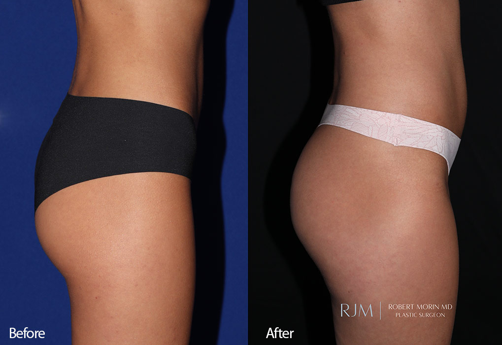 Woman's buttocks , Before and After Emsculpt Treatment, front side view, patient 7