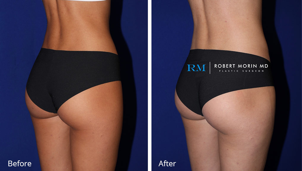 Woman's buttocks , Before and After Emsculpt Treatment, front side view, patient 9
