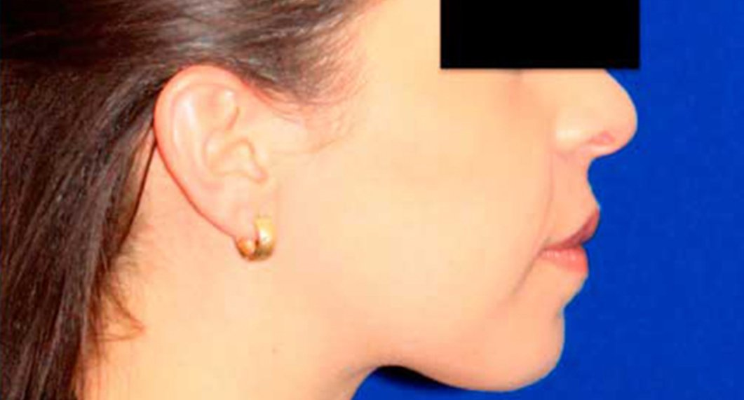 Genioplasty. After Treatment photo - patient 1
