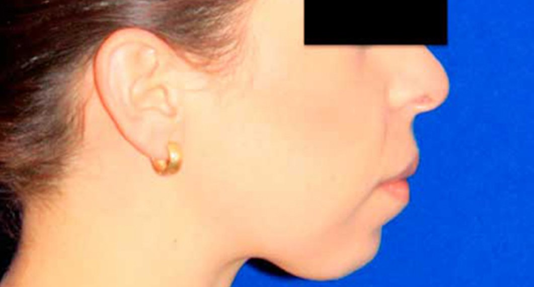 Genioplasty. Before Treatment photo - patient 1