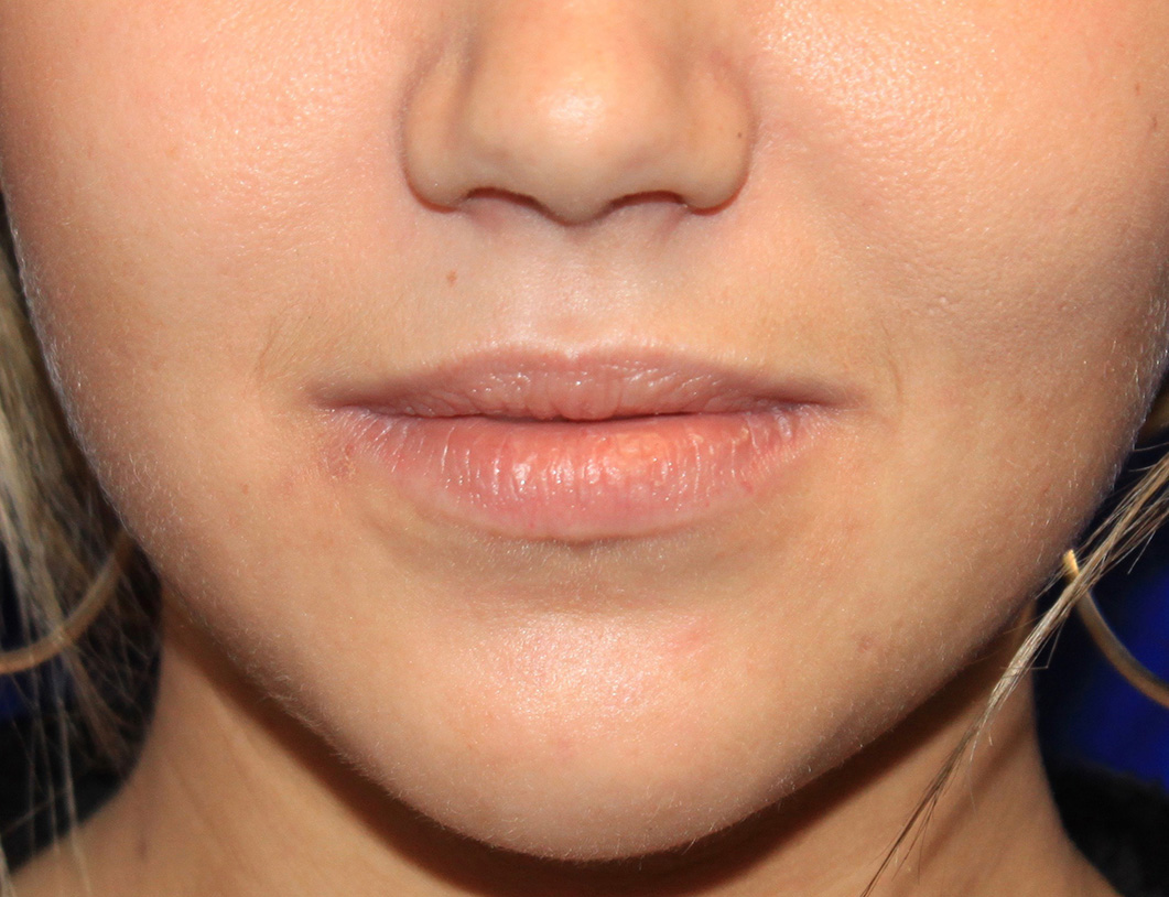 Lip augmentation. Before Treatment photo - female patient 1
