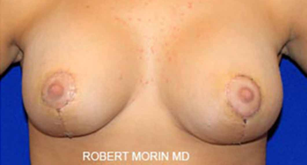 Mastopexy Surgery. After Treatment photo - female patient 1