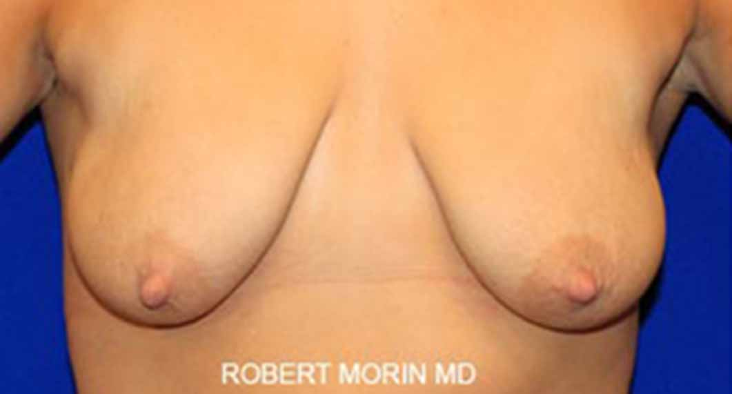 Mastopexy Surgery. Before Treatment photo - female patient 1