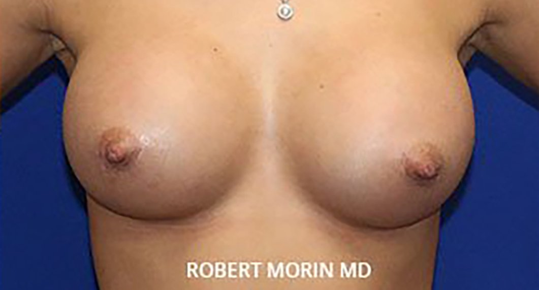 Breast Augmentation. After Treatment photo - female patient 1