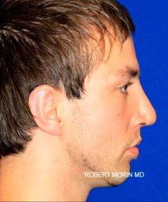 After Treatment photo - Rhinoplasty - patient 2