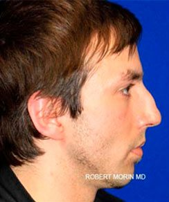 Before Treatment photo - Rhinoplasty - patient 2